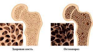 К кому обращаться при заболевании остеопороз