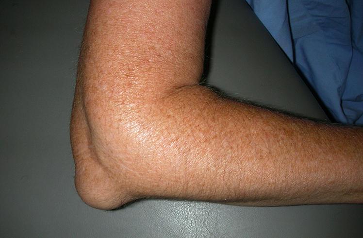 Боль В Ноге От Позвоночника