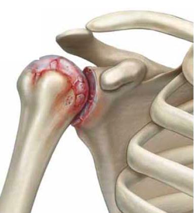 Плечо с артритом