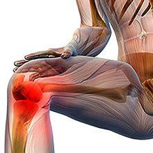 Артроз коленного сустава — симптомы, особенности и лечение