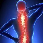 Боли при остеохондрозе: причины и как ее снять