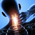 Остеохондроз шейного отдела позвоночника: симптомы и как лечить