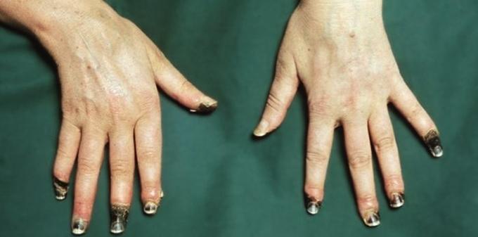 Изображение - Немеют суставы пальцев рук bol_r
