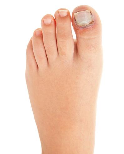 На ноге опух палец
