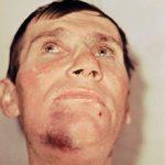 Ушиб челюсти после удара: симптомы, последствия и что делать