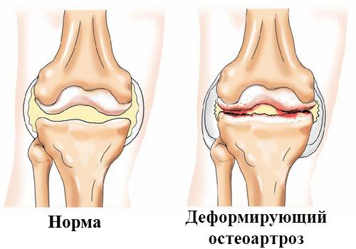 Норма и Деформирующий остеоартроз