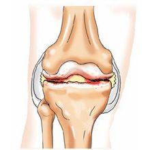 Деформирующий остеоартроз — виды, симптомы и лечение