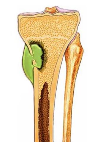Как выглядит кость при болезни