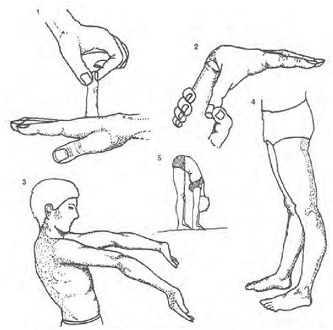 Упражнения от дисплазии