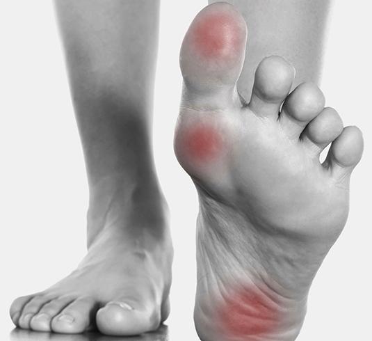 Боль в пальце при ходьбе