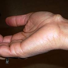Гигрома на кисти руки