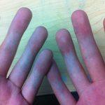 Не сгибаются пальцы рук: причины и что делать