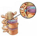 Грыжа поясничного отдела позвоночника: симптомы, диагностика и лечение