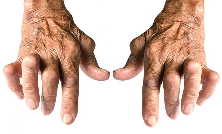 Пальцы при артрите