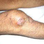 Туберкулез костей и суставов: симптомы, первые признаки и лечение