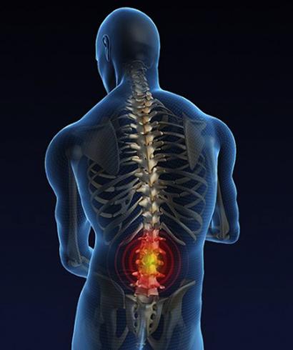 Как выглядит остеохондроз поясничного отдела