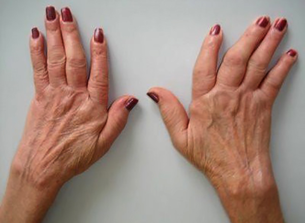 Как выглядит полиартроз