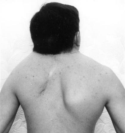Как выглядит Синдром Клиппеля-Фейля