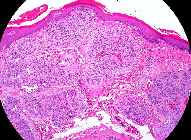 Клетки гемангиомы