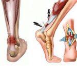 Растяжение сухожилий на ноге: симптомы, чем это опасно и что делать