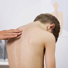 Сколиоз (искривление позвоночника) у детей: причины и лечение
