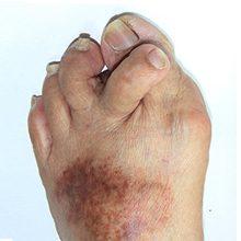 Ревматоидный артрит: симптомы, лечение и прогноз