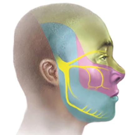 Невралгия на лице