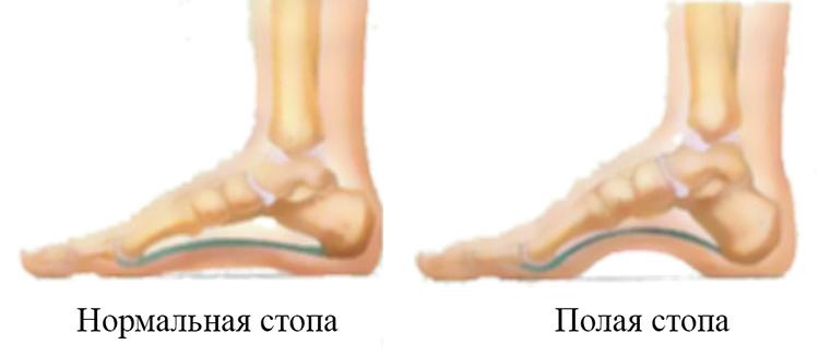 Норма и полая стопа