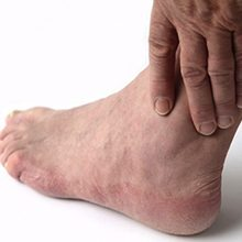 Артроз голеностопного сустава: симптомы, диагностика и лечение