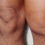 Если колено опухло и болит при сгибании: что это может быть и что делать