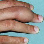 Что делать если опух палец на руке и чем это опасно