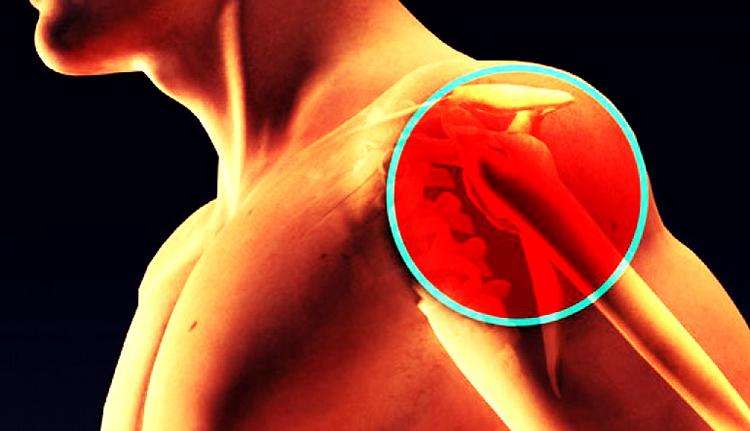 Как выглядит плечевой остеохондроз