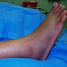 Отёк ноги после перелома лодыжки: причины и что делать