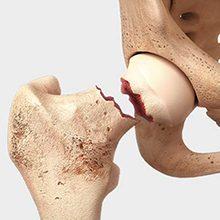 Перелом тазобедренной кости: симптомы, лечение и последствия