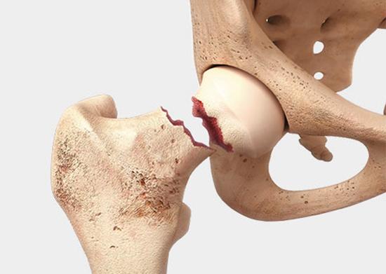 Сильный перелом