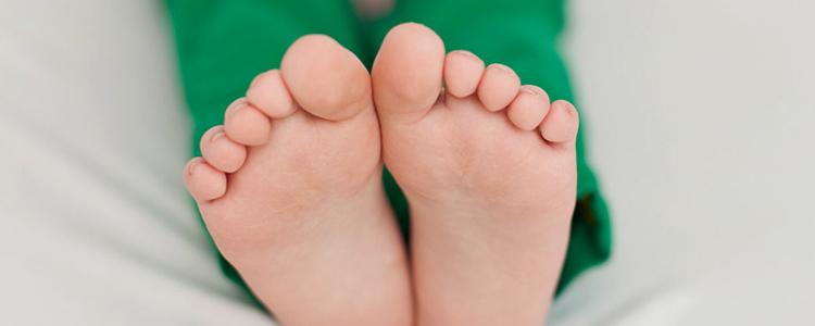 У ребенка плоскостопие
