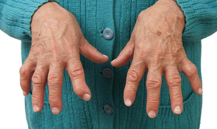 Полиартроз рук