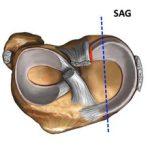 Разрыв и повреждение заднего рога медиального мениска: симптомы и лечение
