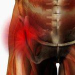 Растяжение паховых связок и мышц: причины, симптомы и лечение