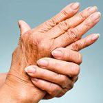 Ревматизм: что это, симптомы и как его лечить