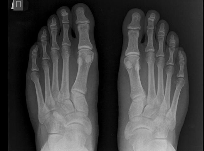 Снимок пальцев ног