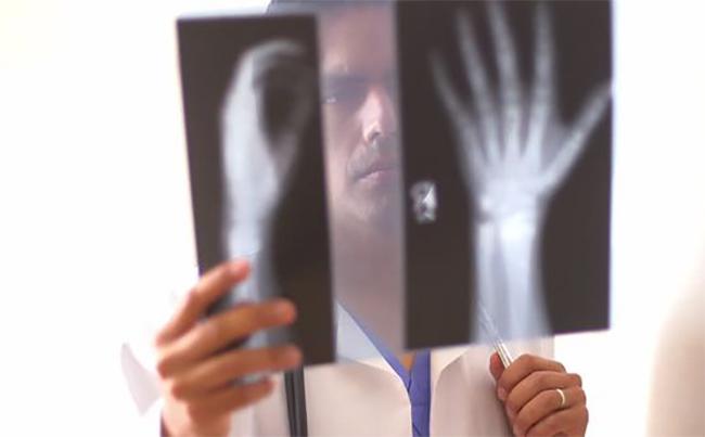 Рентген руки