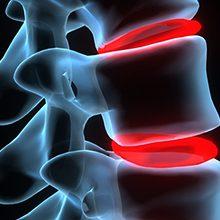 Артроз дугоотросчатых суставов: причины, симптомы и лечение