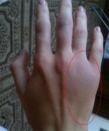 Сильный ушиб руки
