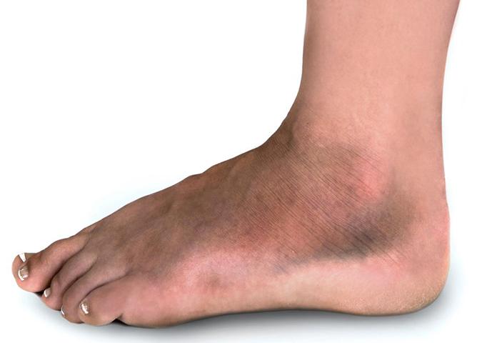 Симптомы перелома голеностопа