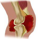 Жидкость в коленном суставе — причины появления, симптомы и лечение