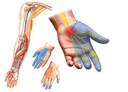 Изображение - Немеют суставы пальцев рук sin122