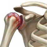 Артрит плечевого сустава: причины, симптомы и как лечить