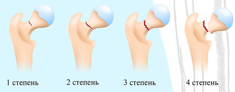 Степени перелома