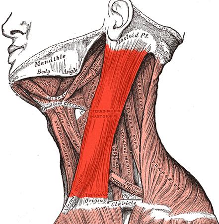 Растяжение мышцы